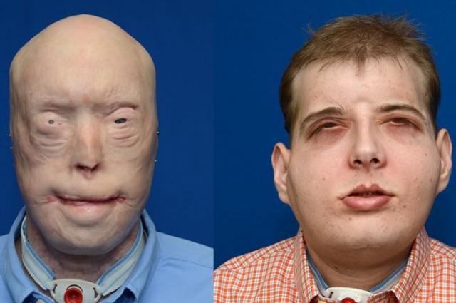 Bombero recibe el transplante de cara mas caro del mundo