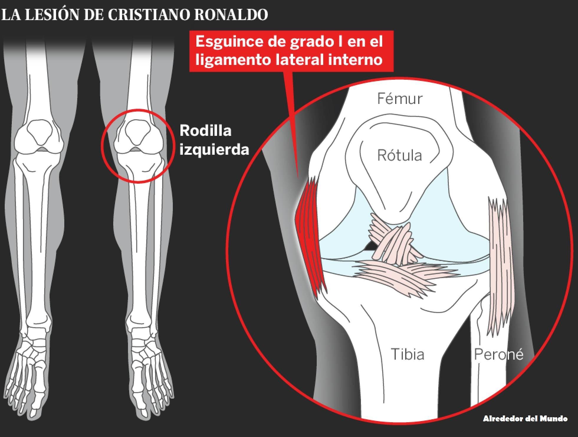 La lesión de Cristiano Ronaldo en partido final Francia Y portugal 2016
